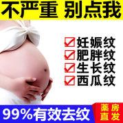 祛去除妊娠妊辰纹修复霜产后孕妇预防专用消除淡化紧致神器肥胖纹